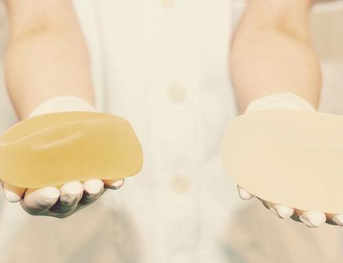 Implantes estéticos: temporários x definitivos