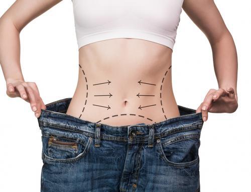 Mitos e verdades sobre cirurgia plástica após grandes emagrecimentos