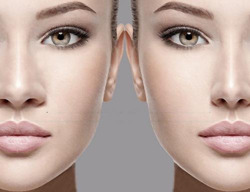 Rinoplastia para nariz negroide: como funciona?