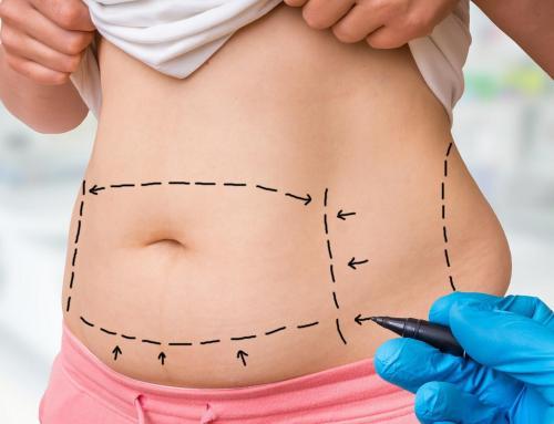Lipoescultura: como é o pós-operatório?