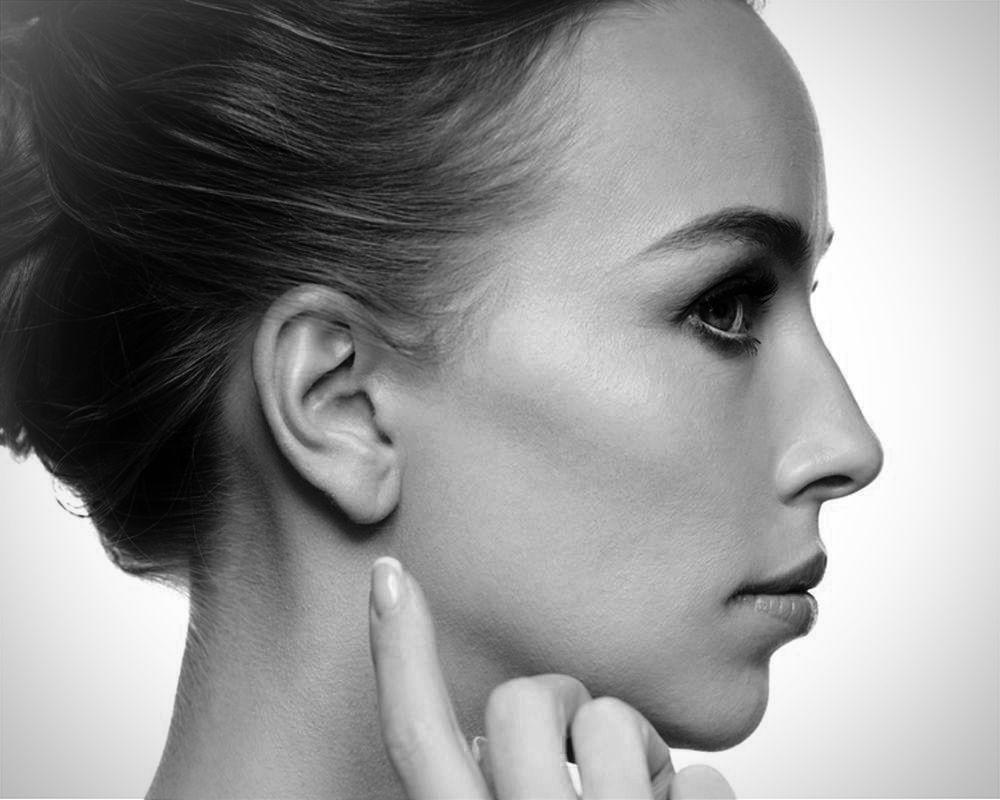 Redução de orelhas: é possível?