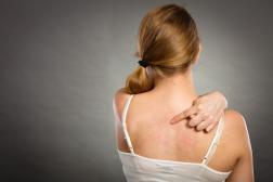 Acne nas costas: Dicas para se livrar desse problema