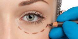 Cirurgia para eliminar bolsa embaixo dos olhos
